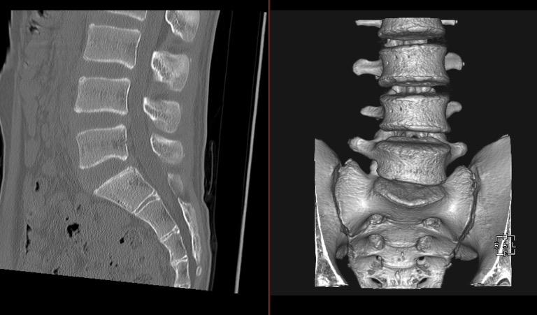 腰椎の単純CT画像と3DCT画像